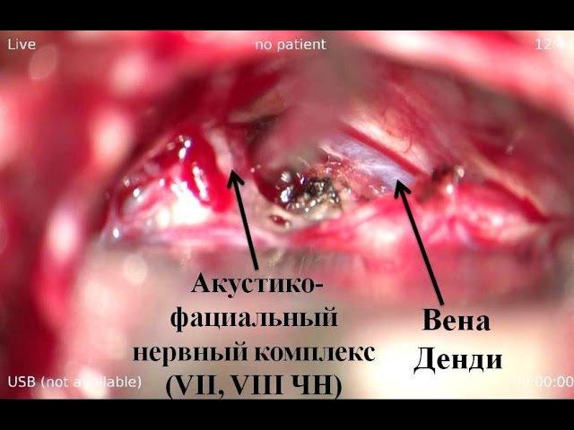 Удаление большой петрокливальной менингиомы часть 1