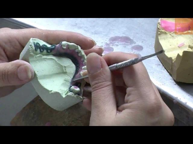 Confección de la estructura colada de una protesis parcial removible - Lección práctica UCV