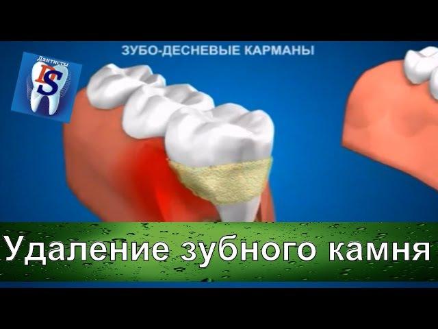 Уроки стоматологии: Воспаление десны из за зубного камня Как удалить зубной кам...