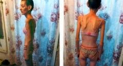 В Калмыкии пытаются спасти молодую мать, которая весит 25 килограммов