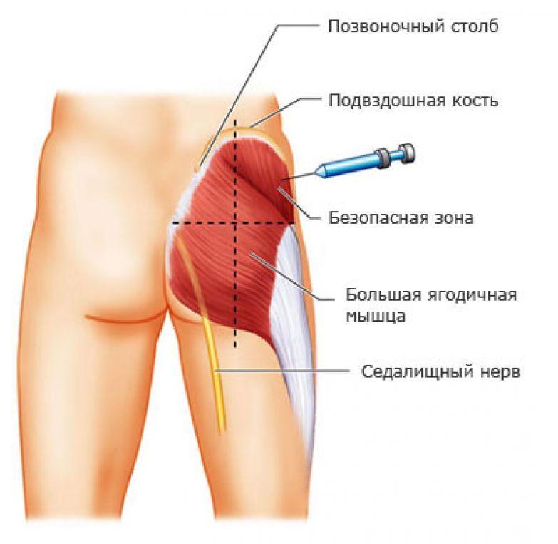 krasavitsa-bryunetka-v-chulkah