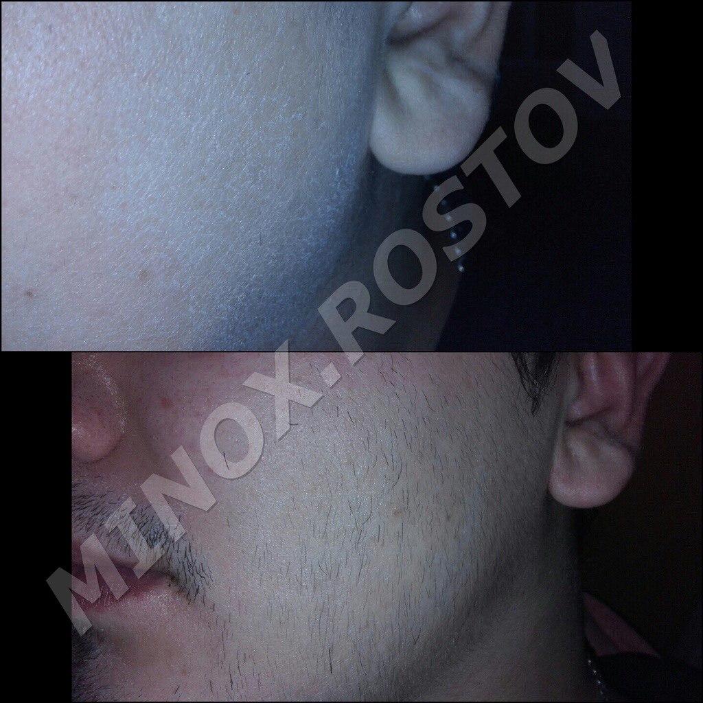 Результат от миноксидила - средство для роста бороды