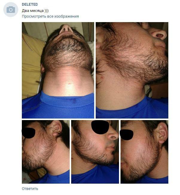 Отзывы от миноксидила - средство для роста бороды