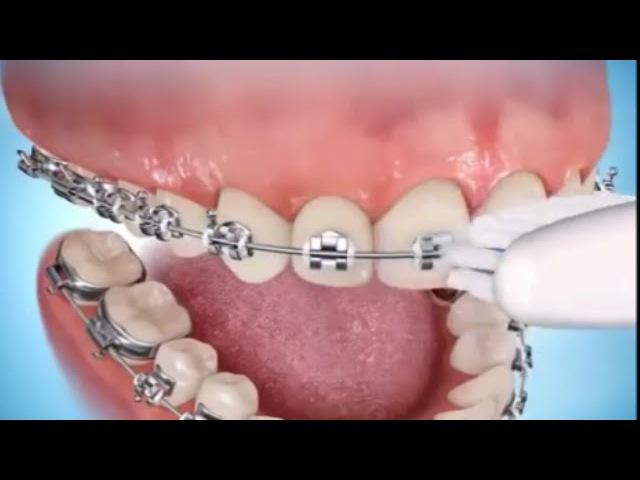 Как правильно чистить зубы с брекетами Ортодонтия Стоматология