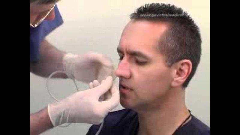 Nasogastric Intubation Demonstration