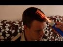 Лечение головы при дцп и родовых травмах. Метод доктора Бандурина