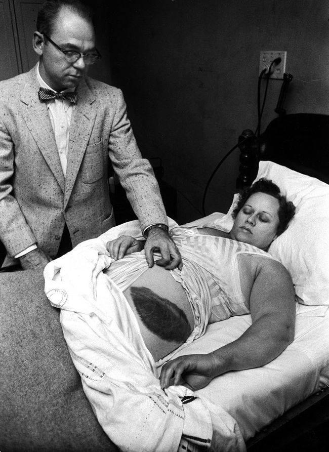 Муди Джайкобс демонстрирует здоровенный синяк у Энн Ходжес, Алабама, США, 1954 год.