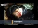 Ukraine un agent de police à Berkut pris en otage a été libéré et a perdu un oeil