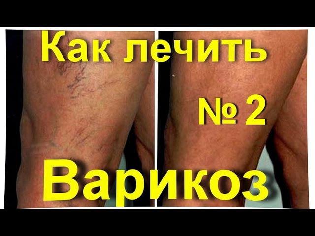 Варикоз варикозное расширение вен народное лечение средство от варикоза № 2 лечениеварикоза