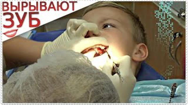 ВЫРЫВАЮТ КОРЕННОЙ ЗУБ МАЛЬЧИКУ |Поход к детскому стоматолог