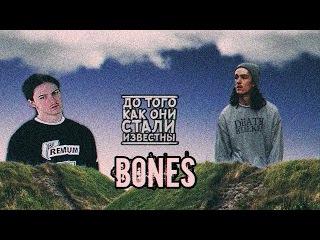 Bones - До Того Как Он Стал Известным