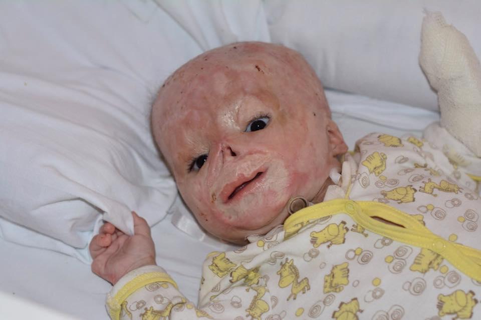 Маленький матвейка все лето отдыхает, следующая операция у него будет только осенью.