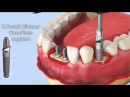 Zimmer One Piece Implant