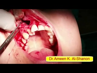 surgical removal of periapical cyst in maxilla