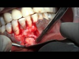 Surgical removal of BIG Periapical cyst in lower mandible VIDEO