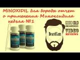 MINOXIDIL для бороды отчет о применения Миноксидила неделя 1
