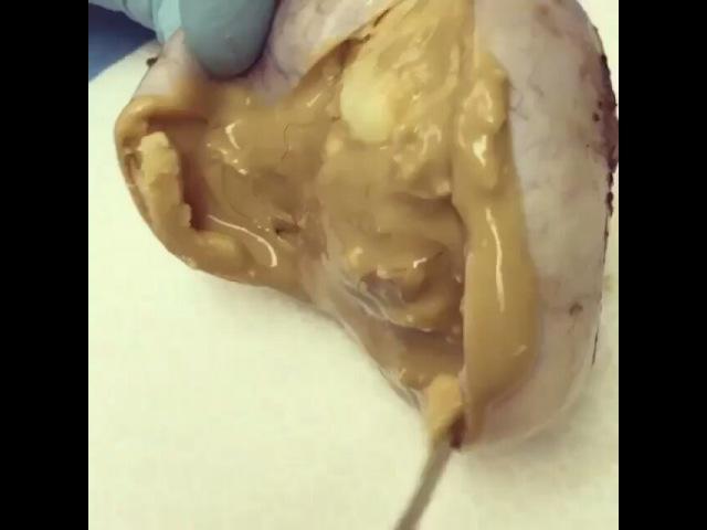 """Медицинская жизнь on Instagram: """"Тератома— опухоль, образующаяся из гоноцитов, наиболее часто в яичниках у женщин, в яичках у мужчин, в крестцово-копчиковой области у…"""""""