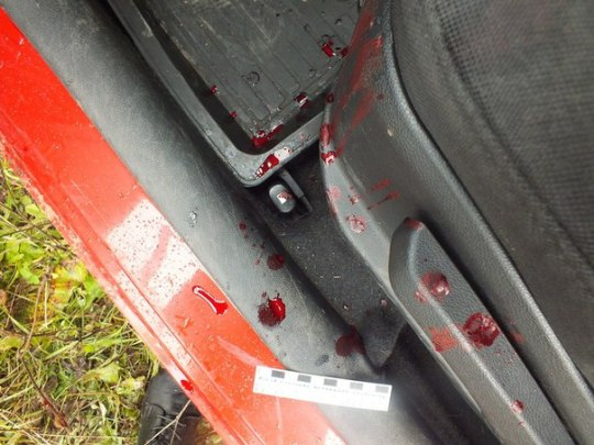 Компенсацию в 180 000 рублей выплатил жительнице Нижнекамска челнинец, 12 раз ударивший ее ножом из-за машины