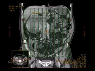 КТ брюшной полости (опухоль почки и тромбоз полой вены)