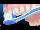 Советы стоматолога. Как правильно чистить зубы.