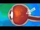 Плавающие объекты в наших глазах — что это такое? [TED-ED]
