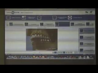 Обзор основных окклюзионных концепций в стоматологии. Артур Минасян