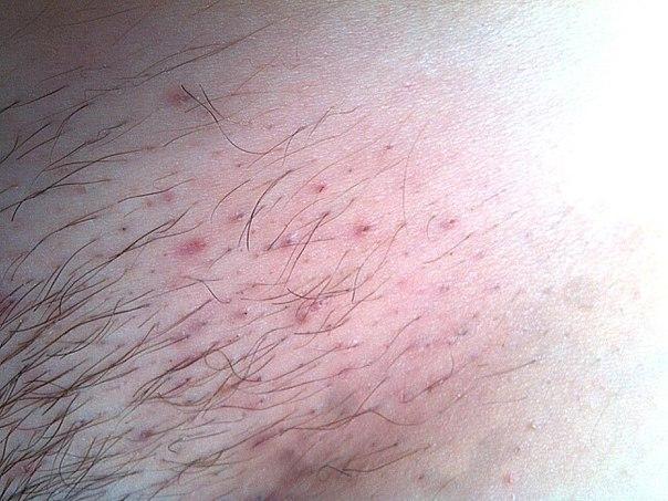 Врастание волос после депиляции в зоне бикини