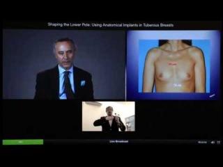 Тубулярная грудь: подбор имплантатов Mentor для создания идеальной формы