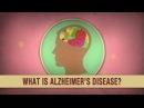 What is Alzheimer's disease Ivan Seah Yu Jun