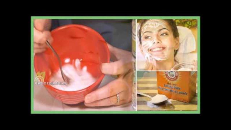 Bicarbonato de Sodio y Limon para Borrar los Granos de Cara