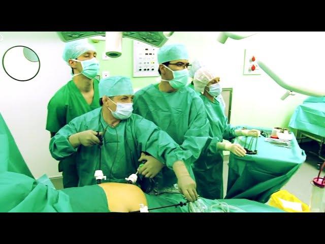 Лапароскопическая резекция толстой кишки Оперирует Бадма Башанкаев в