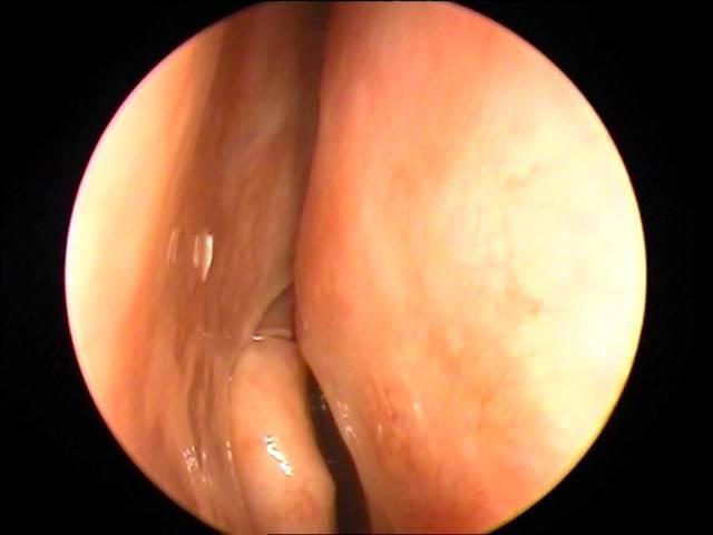Пациентка 24 года с офтальмомиазом и риномиазом. Личинка овечьего овода (?) в полости носа.