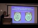 Лихтерман ЛБ Клиническое мышление нейрохирурга нейрохирургия