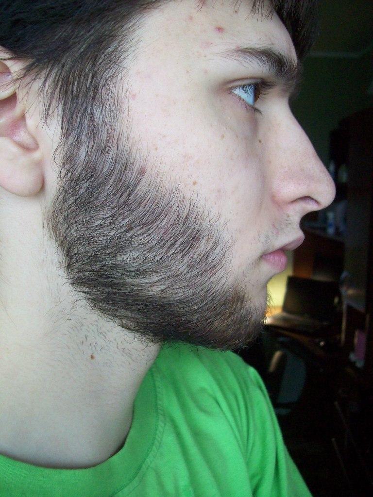 Выращивание бороды миноксидил 32