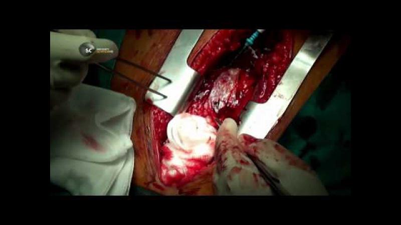 Discovery Инородные тела серия 6