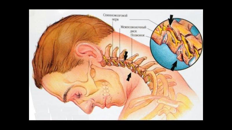 Лечение и профилактика шейного остеохондроза Упражнения йоги для шеи