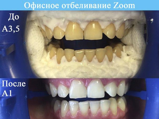 Отбеливание зубов содой- topdentru