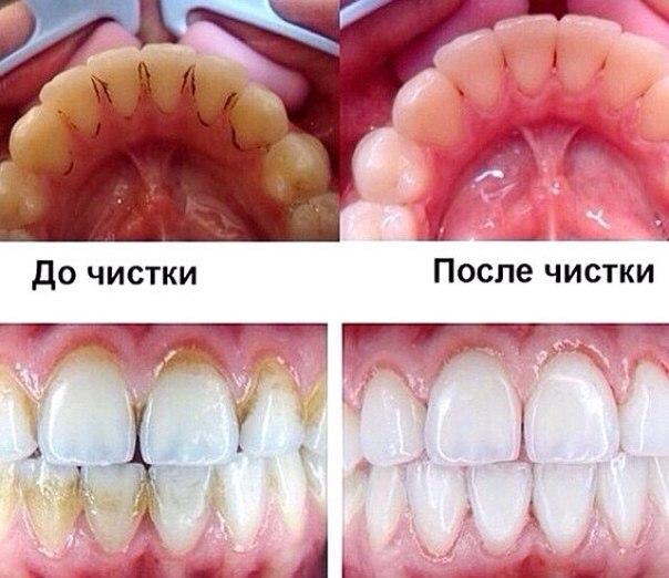 Как избавиться от зубного камня и налета в домашних условиях