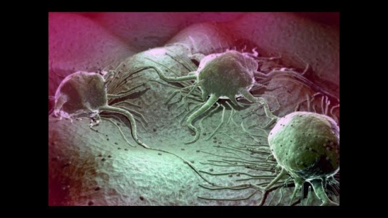 Лечение рака содой (бикарбонатом натрия)