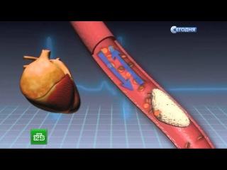 Российские хирурги применили новую технологию для лечения инфаркта миокарда
