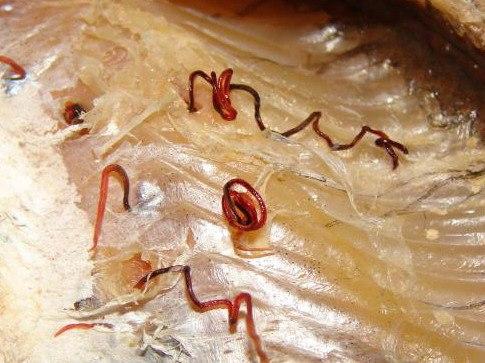 паразиты щуки опасные для человека