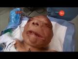 Полная трансплантация лица Аномалии тела