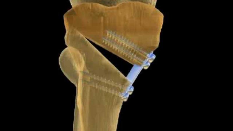 Остеотомия большеберцовой кости