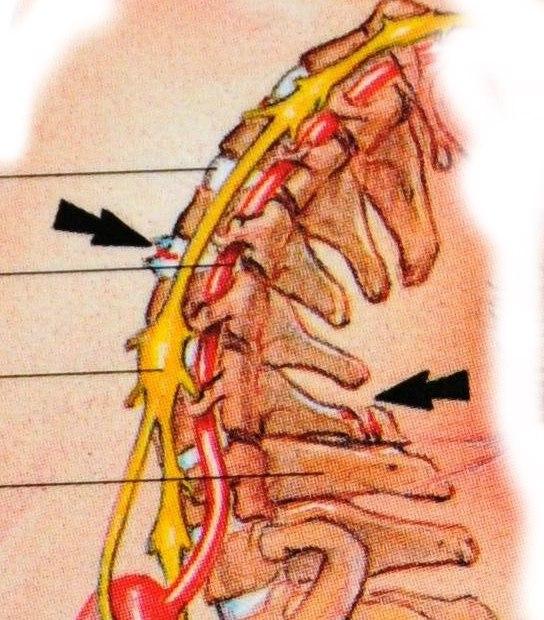 Как лечить травму шейного отдела позвоночника