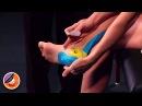 Тейпирование ахилловое сухожилие