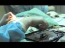 Операция по удалению катаракты у щенка