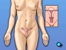 6 nguyên nhân gây bệnh viêm tuyến giáp