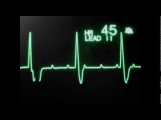Нарушения сердечного ритма и проводимости на мониторе