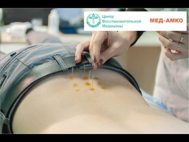 Иглорефлексотерапия - эффективное иглоукалывание | Лечение в Твери.