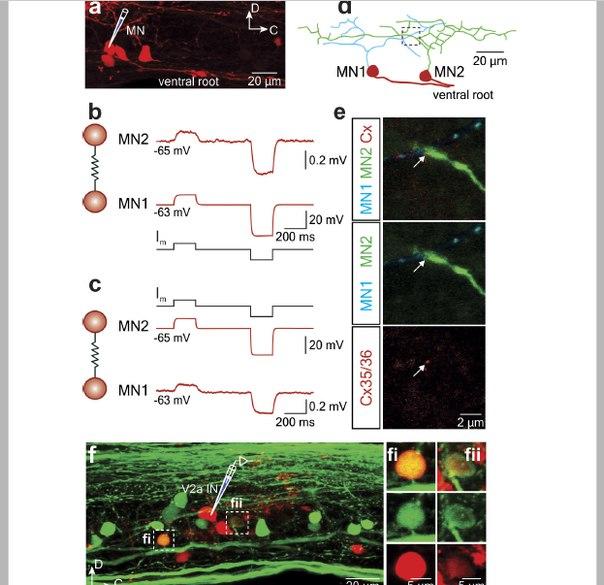 мотонейрон (Motor Neurone)